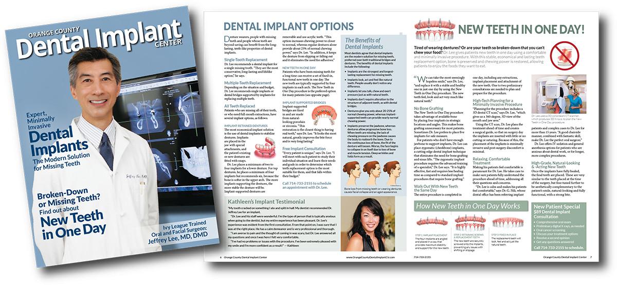 Oral surgeon dental implant marketing